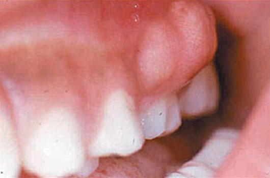 dental-abscess