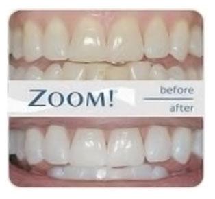 montreal-teeth-whitening