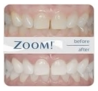 teeth-whitening-montreal
