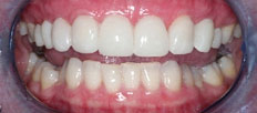 lumineers-porcelain-veneers-treatment-montreal