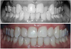 invisalign-dental-clinic-montreal