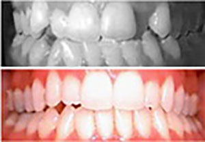 invisalign-montreal-dental-clinic