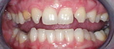 lumineers-porcelain-veneers-dental-clinic-montreal