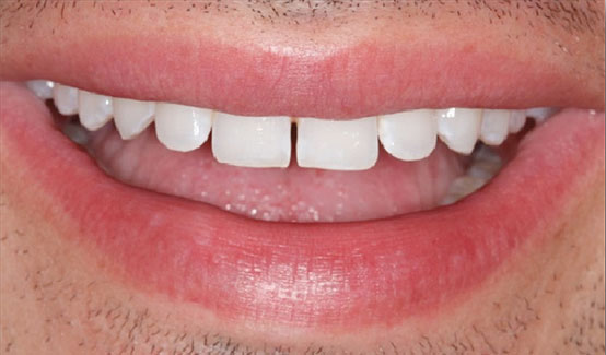 snap-on-smile-dentist-montreal
